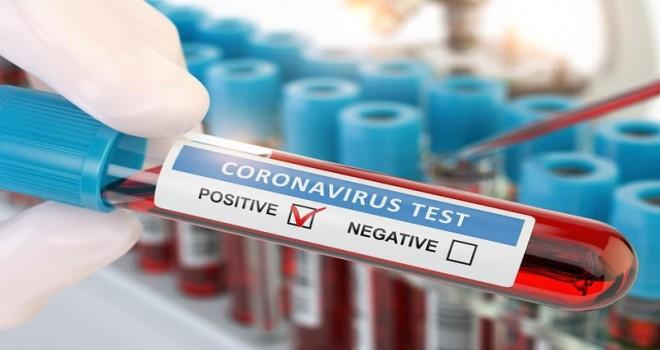 Koronavirusla bağlı testlərin sayı açıqlandı