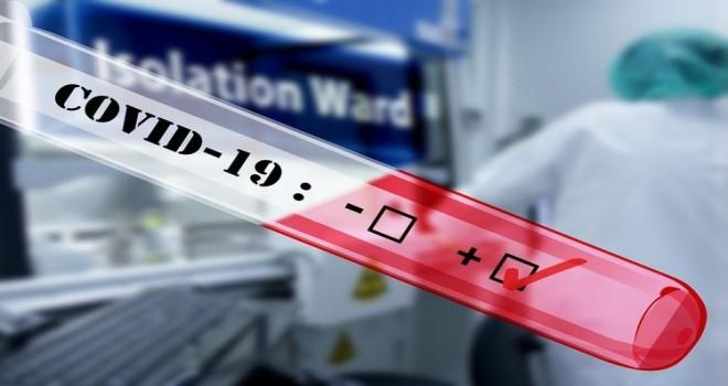 Bakıda iki şirkətdə 112 nəfər koronavirusa yoluxdu - RƏSMİ