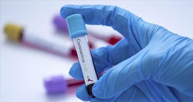 Bu gün koronavirusla bağlı testlərin sayı açıqlandı - RƏSMİ