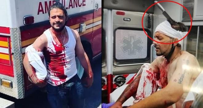 Qadını müdafiə etmək istəyərkən başına bıçaq sancıldı - FOTO/VİDEO
