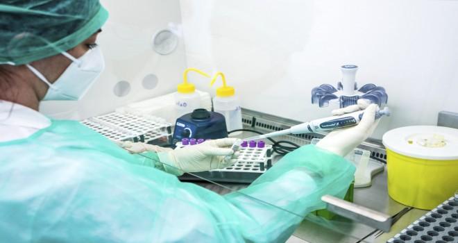 Koronavirusla bağlı testlərin sayı açıqlandı - RƏSMİ